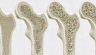 أسباب الإصابة بهشاشة العظام